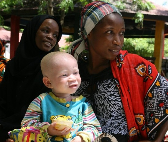 A woman holds her albino child before registering him at the office of the Tanzania Albino Society (TAS) in Dar Es Salaam.